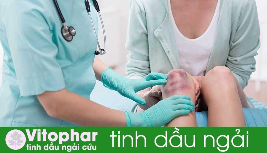 Dầu ngải Vitophar loại bỏ vết bầm tím do máu tụ hiệu quả!